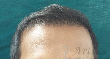 fue hair transplant in pune, FUE Hair Treatment Pune