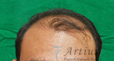 hair transplant cost in pune, Hair Transplant Cost in Pune