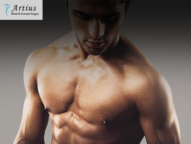 , Things To Know About Gynecomastia Surgery