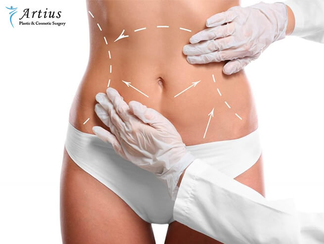 , Lifestyle Changes To Make After Liposuction Surgery