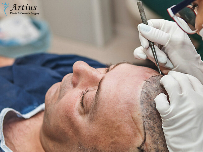 , 5 Factors That Contribute To A Failed Hair Transplant