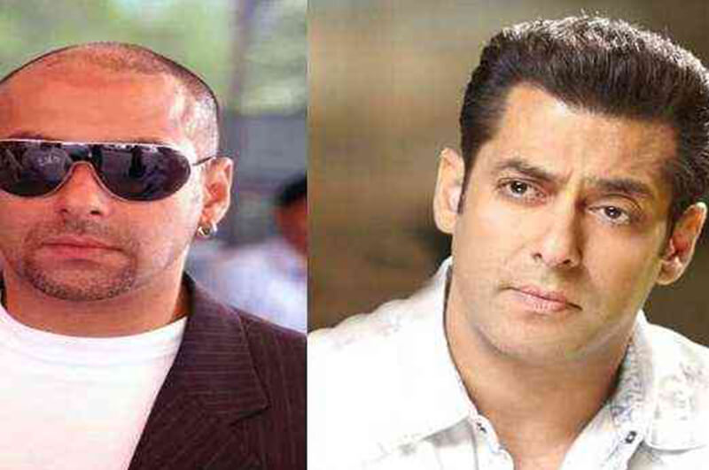 salman khan hair transplant, Know Everything about Salman Khan Hair Transplant