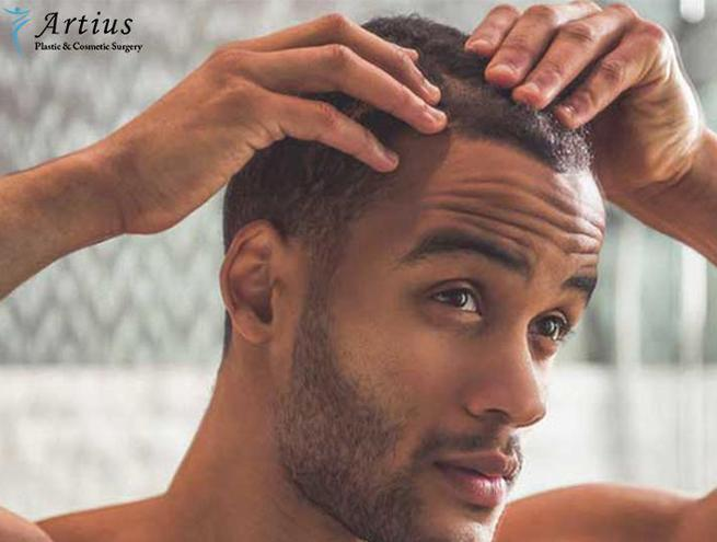, Questions To Ask Yourself Before Getting Hair Transplant?