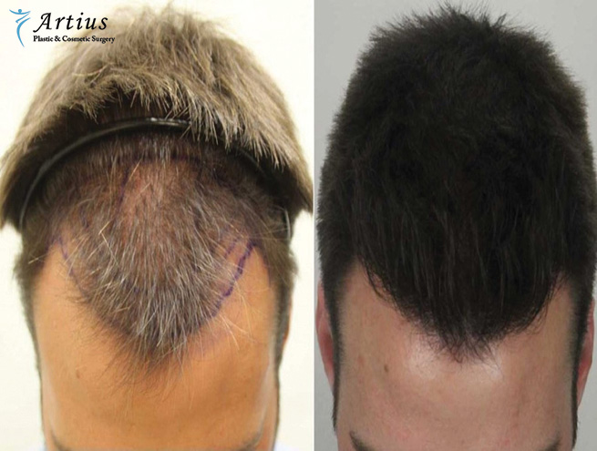 , When Does Hair Starts To Grow After A Hair Transplant?