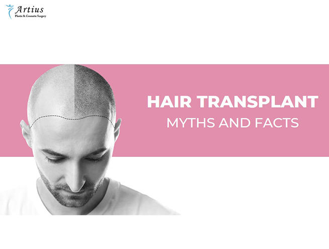 , 8 Important Facts You Should Know About Hair Transplant