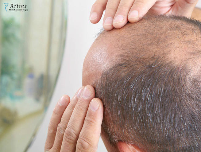 , What Makes India A Popular Destination For Hair Transplant?
