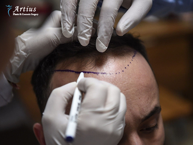, Is Hair Transplant The Most Effective Way For Genetic Baldness?