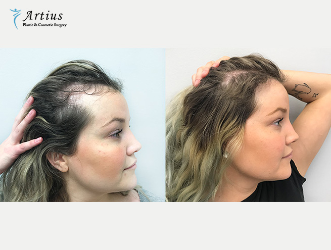 , Does Hair Transplant Works For Female?