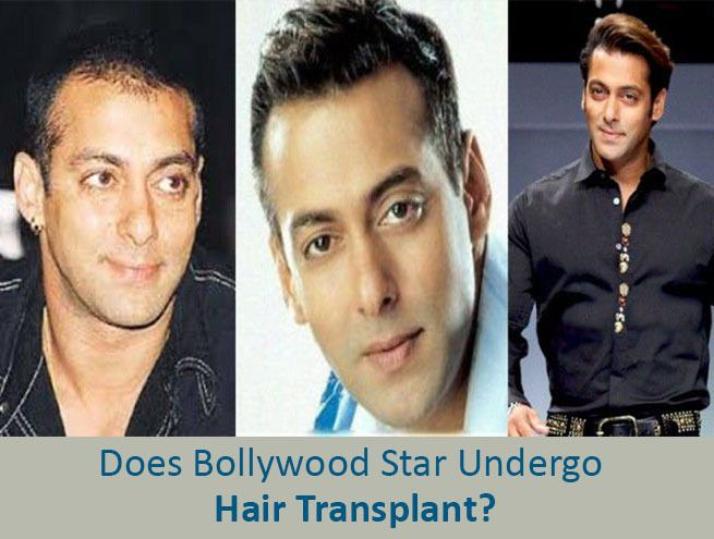 , Know Everything About Salman Khan Hair Transplant
