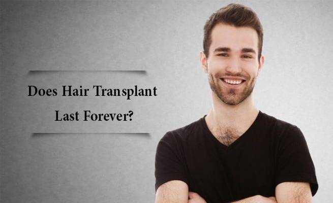 , Does A FUE Hair Transplant Last Forever?