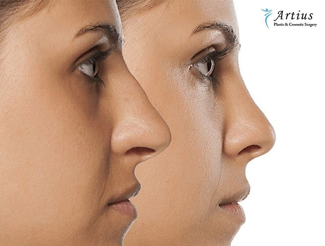 , What Exactly Is Rhinoplasty?
